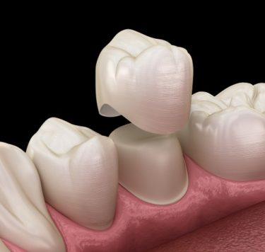Treatment - Dental Crowns Newport Pagnell