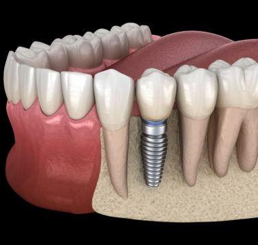 Treatment - Single Tooth Implants