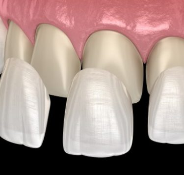 Treatment - Veneers