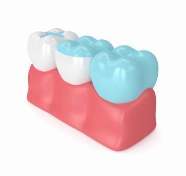 Treatment - Inlays and Onlays